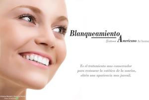 BLANQUEAMIENTO dental PROFESIONAL AMERICAN SYSTEM